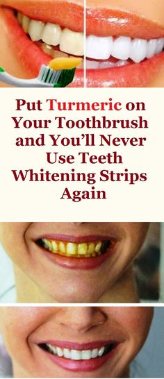 PUT TURMERIC ON YOUR TOOTHBRUSH AND YOU'LL NEVER USE TEETH WHITENING STRIPS AGAIN Teeth get darker in years due to the consumption of coffee, tea, fizzy drinks and if you are a smoker due to smoking cigarettes. As a result of this the teeth whitening procedure has become the most frequently used dental procedure in the dentist's office.