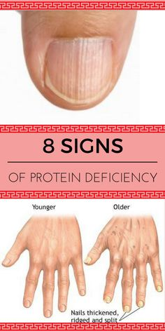 Signs of protein deficiency.....