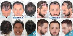 Hair transplant results at Cosmedica clinic in Turkey