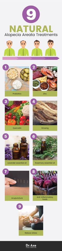 9 alopecia areata natural treatments - Dr. Axe http://www.draxe.com #health #holistic #natural #diy