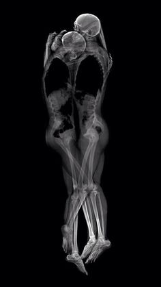 ...Embrace Xray kiss love X-Ray art by Nick Veasey RADIOGRAPHX-RAY PHOTOGRAPHY / X-RAY ART More At FOSTERGINGER @ Pinterest