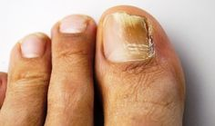 Nail fungus, or onychomycosis in medical terms, is a stubborn fungal infection that can stay on for years if left untreated. Best Toenail Fungus Treatment, Nail Treatment, Doterra, Fingernail Fungus, Ongles Forts, Toe Fungus, Fungal Nail Infection, Nail Oil, Home Remedies