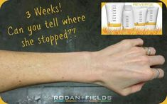 Try this with your own Skin! Reverse those signs of aging & sun damage! www.nstrauss.myrandf.com
