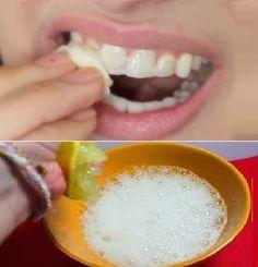 Blanchir vos dents jaunes en moins de 2 minutes!