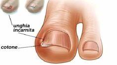 Se la pelle attorno la unghia si è arrossita, o se è comparsa un'infezione, è [Leggi Tutto...]