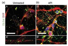A new study reports a substance found in thyme, parsley and red pepper improves neuron formation and strengthens synapses. The researchers also report the substance has the potential to treat schiz…