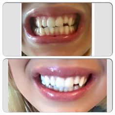 have you always dreamed of whiter teeth ? then i have the thing for you ... our whitening toothpaste is amazing as you can tell from the results below  results have been seen as quick as the next day & it is totally affordable  xx