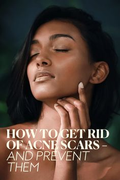 Scar Treatment, Topical Retinoids, Types Of Acne, Hormone Imbalance, How To Get Rid Of Acne, Acne Prone Skin, Acne Scars, Brown Skin