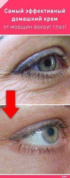 Самый эффективный домашний крем от морщин вокруг глаз!