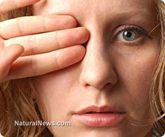 Http Www Naturalnews Com  Cataracts Natural Remedies Vision Html