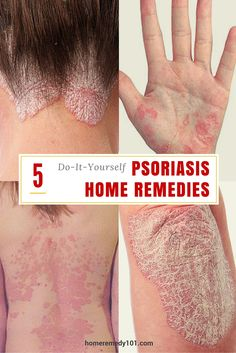 5 Do-It-Yourself Psoriasis Home Remedies