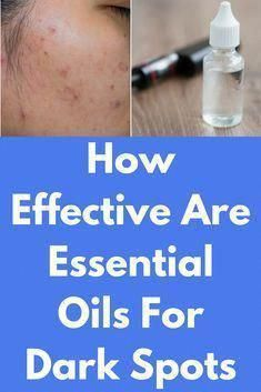 How to Eliminate Brown Spots on Face Normally Sun Spots On Skin, Black Spots On Face, Dark Spots On Legs, Brown Spots On Skin, Sunspots On Face, Spots On Forehead, Home Treatment, Moisturizer For Dry Skin, Oils For Skin