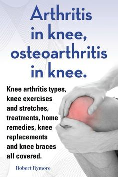 Arthritis in knee, osteoarthritis in knee. Knee arthritis exercises and stretches, treatments, home remedies, knee replacements and knee braces all covered. by Robert Rymore