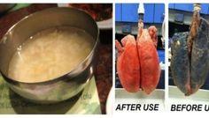 Als u al meer dan 5 jaar rookt zal dit recept alsnog gemakkelijk uw Longen zuiveren.
