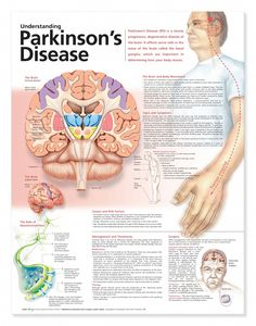 Understanding Parkinson's Disease anatomy poster lists symptoms such as decreased/loss of sense of smell, depression, sleep problems, etc. Neurology for doctors and nurses. by latonya Occupational Therapy, Physical Therapy, Speech Therapy, Degenerative Disease, Nursing Notes, Medical Information, Pharmacology, Alzheimers, Nursing Students