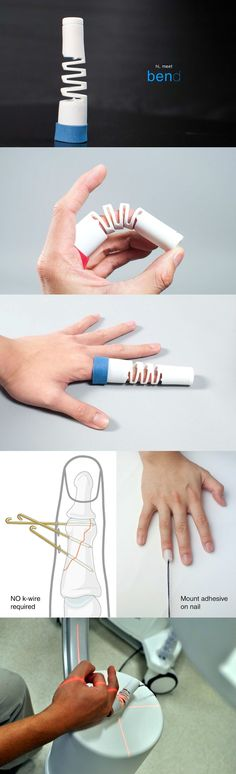 The Bend is a medical finger-splint with a revolutionary design. Finger bone…