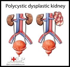 Polycystic Dysplastic Kidney
