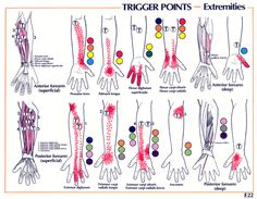 Carpal Tunnel Syndrome | GadiBody.com | Neuromuscular Therapy - Strain Counterstrain Pain Relief - Los Angeles, Santa Monica CA