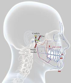 http://www.dental-delhi.com/root-canal-treatment-in-delhi/