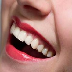 Home Remedies For Teeth Whitening:  1. Hydrogen peroxide with baking soda OR   2. white vinegar with a teaspoon of salt OR  3. Rub teeth with the rind of an orange  4. Rub teeth with the inside of a banana peel