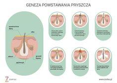 Jak powstają pryszcze? Zapraszamy do lektury artykułu na temat trądziku #acne #maxdermasebum #zortex #clarena