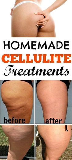 Cellulite treatments to do at home