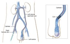 Male Infertility – Best Varicocele Surgery Hospital in India