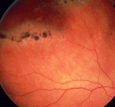 Lattice degeneration of retina >> retinal detachment Health Tips, Health Care, Medical Photography, Eye Facts, Eye Exam, Healthy Eyes, Eye Doctor, Human Eye, Medical Assistant