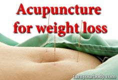 Acupressure Weight Loss By quite a few, acupuncture for weight loss is considered a nice alternative to radical weight-loss surgery or pills. Fast Weight Loss Diet, Best Weight Loss Program, Weight Loss Cleanse, Weight Loss Secrets, Weight Loss Shakes, Losing Weight Tips, Weight Loss Goals, Ways To Lose Weight, Healthy Weight Loss