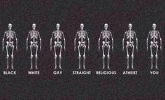 Banksy: Human Via Twitter @therealbanksy August 10 2014 Go to Twitter for comments on anatomical accuracy.