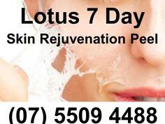 The Lotus 7 Day Skin Rejuvenation Peel - Southport Gold Coast (07) 5509 4488 by TheLotusInstitute via slideshare http://lotus-institute.com.au/chemical-peel