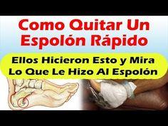 ELLOS HICIERON ESTO Y MIRA QUE PASO AL ESPOLON Espolon Calcaneo Tratamiento Altamente Efectivo - YouTube
