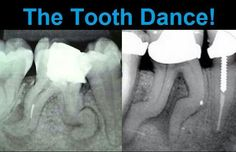 "Can you do ""The Tooth Dance""? http://www.dentalinnovationshouston.com/"