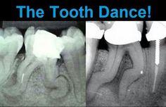 "Can you do ""The Tooth Dance""?  http://www.dentalinnovationshouston.com/"
