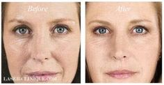 Sculptra- An amazing volume booster for those areas that start to look hollow or depressed. who couldn't use a little plumping? after all it is the sign of a youthful face! Before After Photo, Before And After Pictures, Liquid Facelift, Reverse Aging, Anti Aging Facial, Aesthetic Pictures, That Look, Depressed, Youth