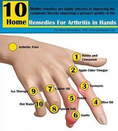 Pain Remedies Know the natural home remedies for arthritis in hands, which are available in your very own kitchen. These home remedies are highly effective in improving the symptoms of arthritis of hands thereby improving a person's quality of life. Natural Cure For Arthritis, Home Remedies For Arthritis, Arthritis Relief, Types Of Arthritis, Natural Home Remedies, Health Remedies, Herbal Remedies, Psoriasis Remedies, Massage Therapy