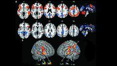 Unlocking Creativity in the Brain | Society for Neuroscience