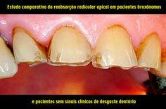 Estudo comparativo da reabsorção radicular apical em pacientes bruxônomos e pacientes sem sinais clínicos de desgaste dentário | OVI Dental