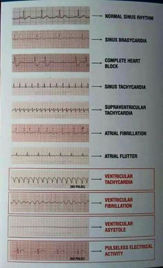 Tele Strip EKG readings