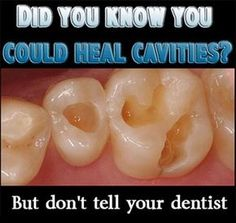 How to heal cavities naturally! The lies perpetrated about tooth decay!