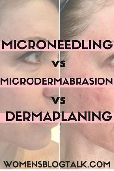 I've tried all 3 click through to see my microneedling before and after photos, microdermabrasion before and after photos, and dermaplaning before and after photos Personal Microneedling results, m is part of Microneedling - Facial Treatment, Skin Treatments, Anti Aging, Medical Esthetician, Home Microdermabrasion, Skin Care Home Remedies, Perfect Skin, Beleza, Skin Products