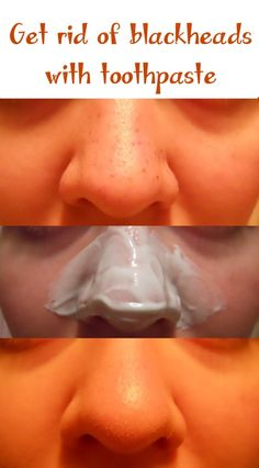 Get rid of blackheads with toothpaste | Natural Beauty