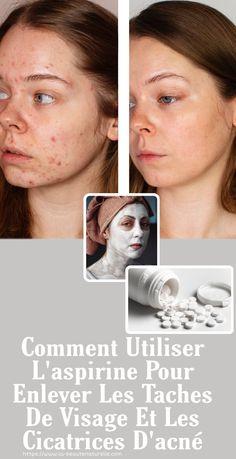 Il est bien connu que l'aspirine agit comme un analgésique, qui, depuis qu'elle a été inventé en 1853, a été responsable de l'apaisement de la douleur et de la réduction des fièvres. En outre, elle agit comme un anti-coagulant, recommandé pour les personnes souffrant de problèmes cardio-vasculaires. Mais, non seulement ces propriétés nous sont familières. L'aspirine peut être utilisée pour faire un masque qui aidera à réduire l'apparence des cicatrices, des rides et des marques d'acné. Vous pouv Cardio, Quizzes, Skin Care, Outre, Beauty, Parfait, Diy, Posters, Sport