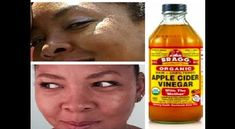 Braggs Apple Cider Vinegar For Acne