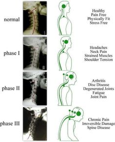 Neck Pain, Back Pain, Posture, and Degenerative Changes