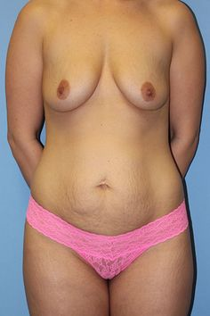 Find out what this Mommy looks like after her Mommy Makeover with Dr Firouz in Beverly Hills!
