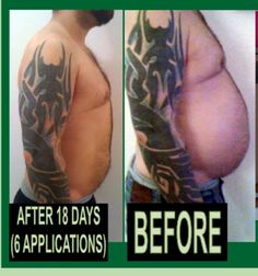 Look what the Ultimate Body Applicator can do. Remove Belly Fat, Stubborn Belly Fat, How To Slim Down, How To Get Rid, Easy Weight Loss, Healthy Weight Loss, Reduce Double Chin, Ultimate Body Applicator, Lose Inches