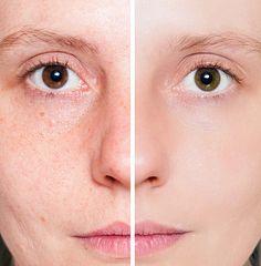 Uma excelente solução natural para tirar manchas da pele, com resultados imediatos! - Aprenda a preparar essa maravilhosa receita de Solução natural para tirar manchas da pele