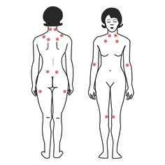 There seem to be links between fibromyalgia syndrome and joint hypermobility syndrome - both include symptoms of widespread pain, and hypermobility syndrome seems to be more common in people with fibromyalgia syndrome than in the general population. Chronic Fatigue, Chronic Illness, Chronic Pain, Herpes Remedies, Fibromyalgia Syndrome, Muscle Disorders, Migraine Pain, Hypermobility, Ehlers Danlos Syndrome