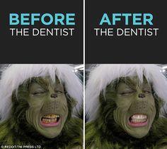 Mature Dental Implants Before And After Signs Humor Dental, Dental Hygiene School, Dental Assistant, Dental Hygienist, Dental Facts, Dental Surgery, Dental Implants, Le Grinch, Dental Photos